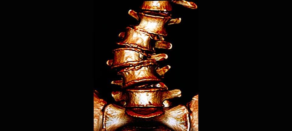 Adult Scoliosis: Degenerative Scoliosis