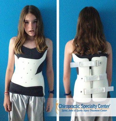scoliosis brace: Boston Brace