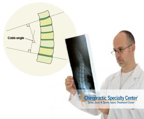 Diagnosis of Scoliosis