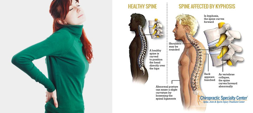 kyphosis and Pain