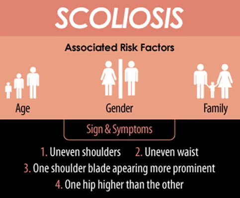 Signs, Symptoms, and Risk factors of Scoliosis