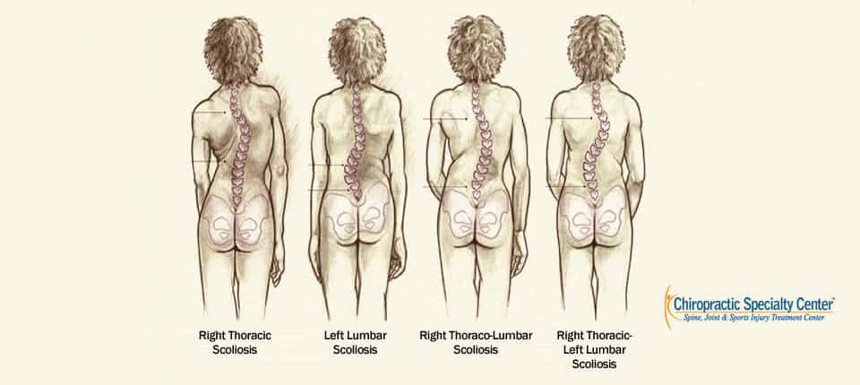 S-Shaped-Scoliosis and C-Shaped-Scoliosis (Double Scoliosis)