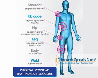 Physical symptoms that indicate Scoliosis