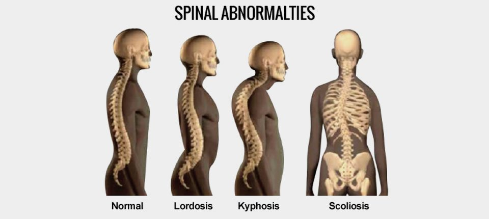 lordosis and spinal abnormalities can be treated in Malaysia