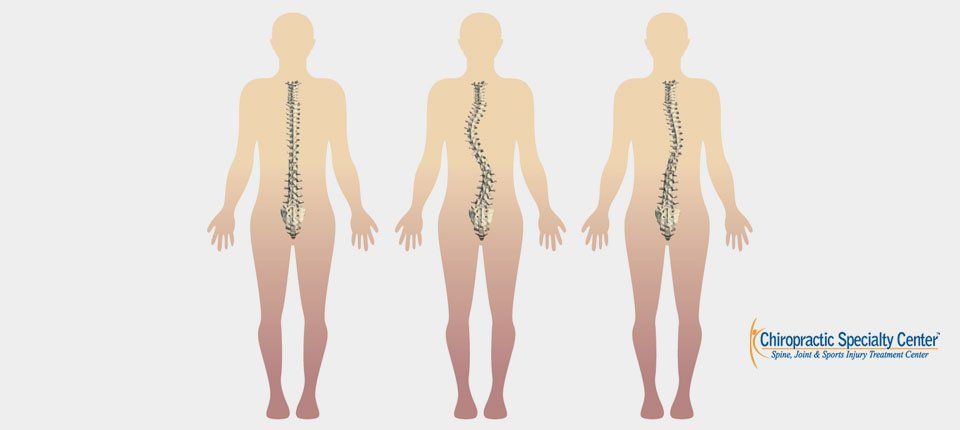Types of Scoliosis Curves: S-Shaped-Scoliosis and C-Shaped Scoliosis