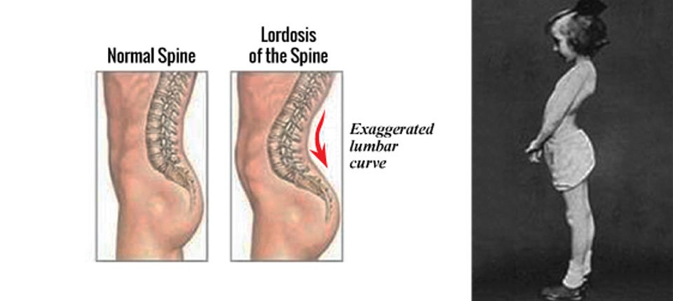 Factors Contribute to Lordosis Curves of Spine