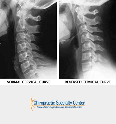 normal and reversed spinal curves of the neck